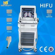 चीन महिला उच्च तीव्रता अल्ट्रासाउंड मशीन नहीं डाउनटाइम सर्जरी केंद्रित आपूर्तिकर्ता